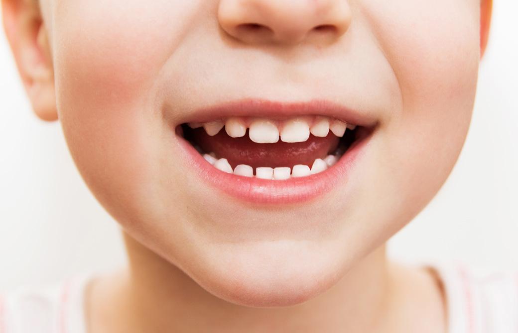 口を開けて微笑んでいる子どもの口元