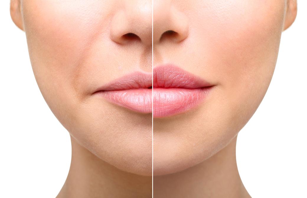 左右異なる顔が配置されたほうれい線をチェックする写真