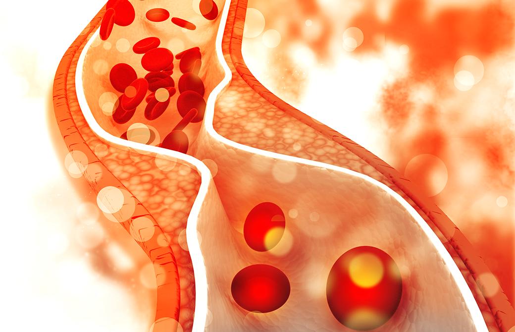 動脈硬化で血管の壁が狭くなり血液の流れが悪くなっている画像