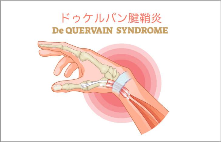 前腕筋の主な筋症は「ドゥケルバン腱鞘炎」