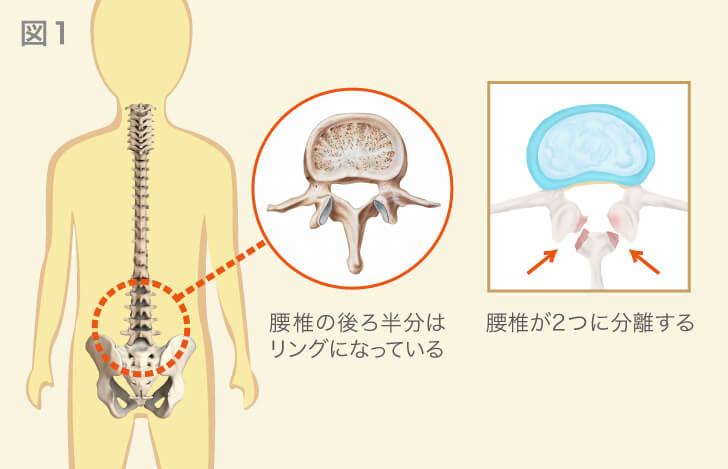 腰椎の形状と腰椎分離症の解説