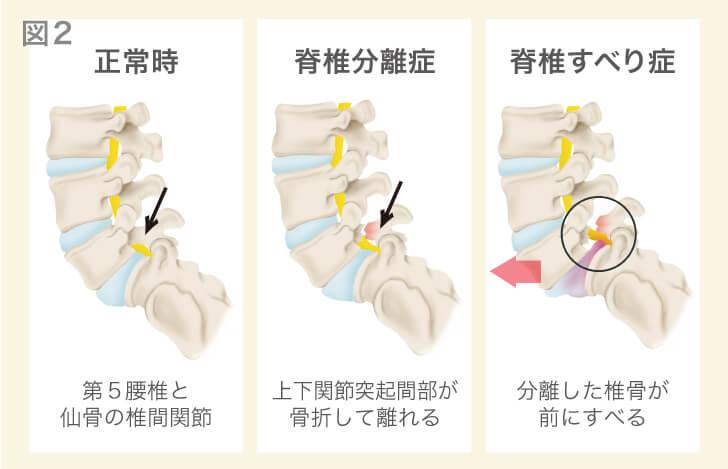 腰椎分離症と腰椎すべり症の解説